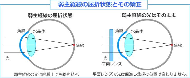 弱主経線の矯正は平面レンズ